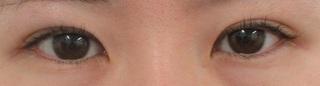 秋葉原美容クリニックの目頭切開、二重切開、上瞼脱脂の症例写真(ビフォー)
