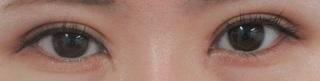 秋葉原美容クリニックの目頭切開、二重切開、上瞼脱脂の症例写真(アフター)