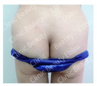 クリニックビューティー恵比寿の症例1153 脂肪再生豊胸溶液による脂肪再生豊尻(ほうこう)施術で仰臥位(仰向け寝)での尾てい骨痛を解消した症例の施術前と施術後約1年での治療部位の画像。の症例写真(アフター)