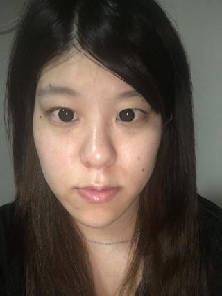 id美容外科の両顎手術,Vライン形成,頬骨最大縮小術の症例写真(ビフォー)