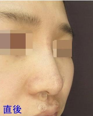 新宿TAクリニックのI 型プロテーゼ 直後の症例写真(アフター)