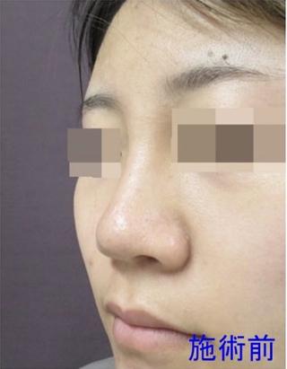 新宿TAクリニックのI 型プロテーゼ、鼻尖縮小、鼻尖4Dノーズ 1週間後の症例写真(ビフォー)