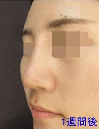 新宿TAクリニックのI 型プロテーゼ、鼻尖縮小、鼻尖4Dノーズ 1週間後の症例写真(アフター)