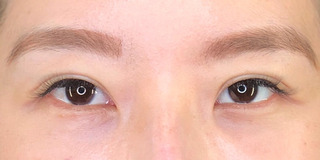 Zetith Beauty Clinicの二重埋没、目の下のクマの症例写真(アフター)