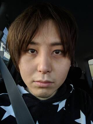 id美容外科のVライン形成,頬骨最大縮小術,V3フェイスリフトの症例写真(ビフォー)