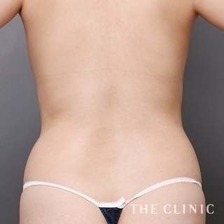 THE CLINIC(ザ・クリニック)名古屋院の腰のベイザー脂肪吸引の症例写真(ビフォー)