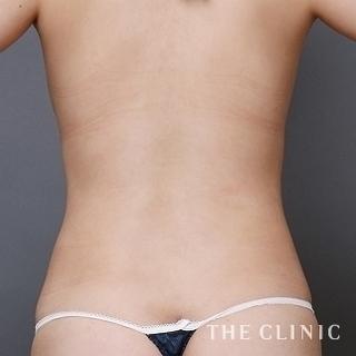 THE CLINIC(ザ・クリニック)名古屋院の腰のベイザー脂肪吸引の症例写真(アフター)
