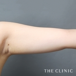 THE CLINIC(ザ・クリニック)横浜院の肩と二の腕のベイザー脂肪吸引の症例写真(ビフォー)