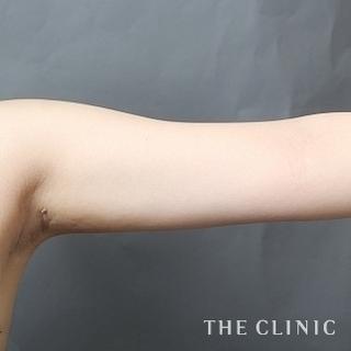 THE CLINIC(ザ・クリニック)横浜院の肩と二の腕のベイザー脂肪吸引の症例写真(アフター)