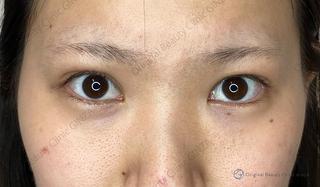 Original Beauty Clinic GINZAの目の上のたるみ取りの症例写真(ビフォー)