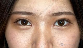 Original Beauty Clinic GINZAの目の上のたるみ取りの症例写真(アフター)