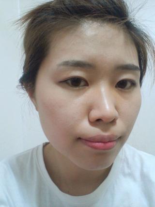 グランド整形外科の二重切開、鼻、輪郭の症例写真(ビフォー)