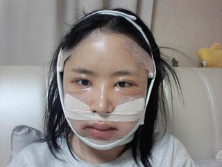 グランド整形外科の頬骨縮小術、エラ削り、貴族手術の症例写真(アフター)