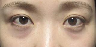 X CLINICの切らない目の下のたるみ+コンデンスリッチ+マイクロナノファット脂肪注入の症例写真(ビフォー)
