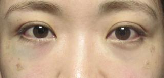 X CLINICの切らない目の下のたるみ+コンデンスリッチ+マイクロナノファット脂肪注入の症例写真(アフター)