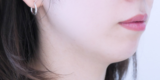 セルリアンタワーイセアクリニック(東京イセアクリニック渋谷院)のISEA HIFU(ドクター施術)3回コースの症例写真(ビフォー)