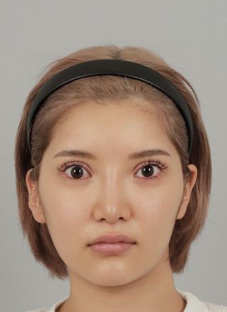 id美容外科のVライン形成,頬骨最大縮小術の症例写真(ビフォー)