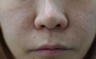 みずほクリニックの人中短縮術(リップリフト)の症例写真(ビフォー)
