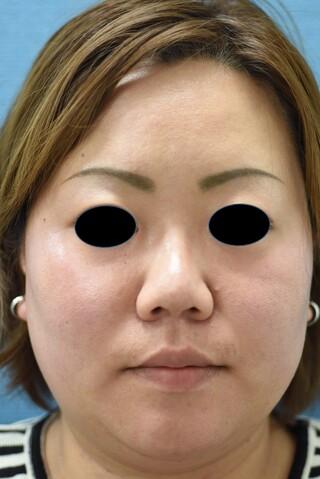 みずほクリニックの頬と首の脂肪吸引で美しい小顔とキレイな首にの症例写真(ビフォー)