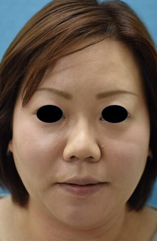 みずほクリニックの頬と首の脂肪吸引で美しい小顔とキレイな首にの症例写真(アフター)