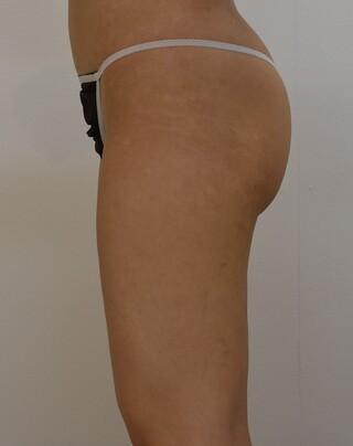 みずほクリニックの手術不要!メスを使わないスカルプシュアによる臀部下部の脂肪除去の症例写真(ビフォー)