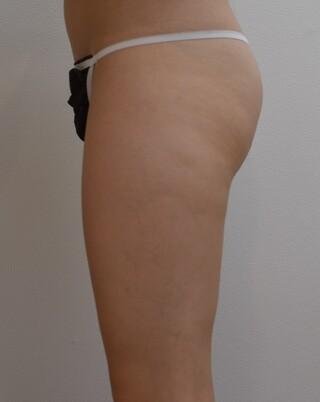 みずほクリニックの手術不要!メスを使わないスカルプシュアによる臀部下部の脂肪除去の症例写真(アフター)