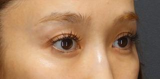 BIANCA銀座の目を美しくする治療の症例写真(アフター)