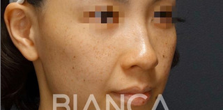 BIANCA銀座のPico Spot✖️ピコトーニング (PicoSure)の症例写真(ビフォー)