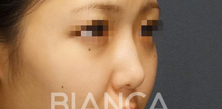 BIANCA銀座の忘れ鼻の症例写真(ビフォー)