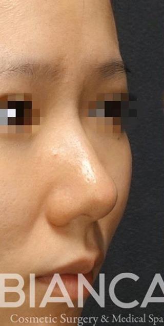 BIANCA銀座の鼻の複合手術の症例写真(ビフォー)