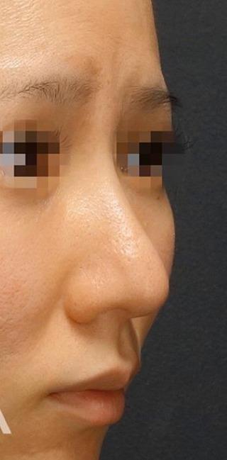 BIANCA銀座の鼻の複合手術の症例写真(アフター)
