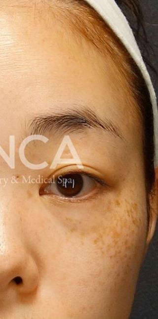 BIANCA銀座のソバカス✖️クマ 同時治療の症例写真(アフター)