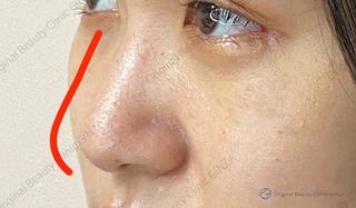 Original Beauty Clinic GINZAのジャスミンノーズの症例写真(ビフォー)