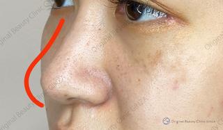 Original Beauty Clinic GINZAのジャスミンノーズの症例写真(アフター)