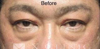 X CLINICの切らない目の下のたるみとり+コンデンスリッチ+マイクロナノファット脂肪の症例写真(ビフォー)