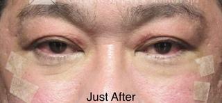 X CLINICの切らない目の下のたるみとり+コンデンスリッチ+マイクロナノファット脂肪の症例写真(アフター)