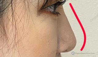 Original Beauty Clinic GINZAのヒアルロン酸(鼻)の症例写真(アフター)