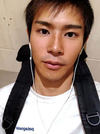 id美容外科の両顎手術、Vライン形成、頬骨横幅縮小術、シークレット鼻整形の症例写真(ビフォー)