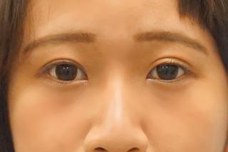 麹町皮ふ科・形成外科クリニックの埋没4点留めの症例写真(アフター)