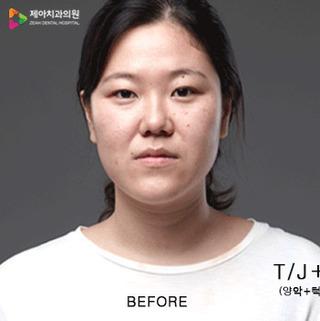 ジェア歯科の両顎+輪郭2点の症例写真(ビフォー)