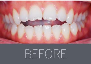 ジェア歯科の歯列矯正の症例写真(ビフォー)