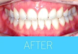 ジェア歯科の歯列矯正の症例写真(アフター)