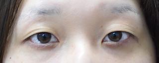 みずほクリニックの二重切開術で好印象な目ヂカラを付けるの症例写真(ビフォー)