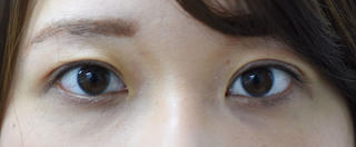 みずほクリニックの二重切開術で好印象な目ヂカラを付けるの症例写真(アフター)