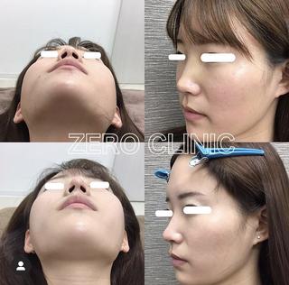 東京ゼロクリニック銀座の鼻尖形成の症例写真(ビフォー)