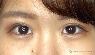 Original Beauty Clinic GINZAの 目頭切開の症例写真(アフター)
