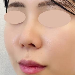 A CLINIC(エークリニック)銀座院の小鼻を小さくしてお鼻のバランスを綺麗に♪【小鼻縮小術切開法】の症例写真(ビフォー)