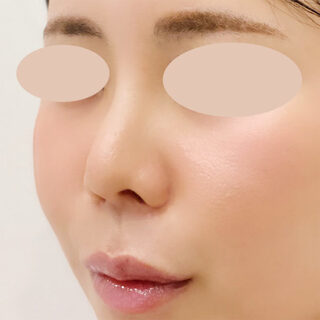 A CLINIC(エークリニック)銀座院の小鼻を小さくしてお鼻のバランスを綺麗に♪【小鼻縮小術切開法】の症例写真(アフター)