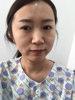 ラボム整形外科の脂肪移植、ゴルゴライン、目の下の脂肪再配置の症例写真(ビフォー)