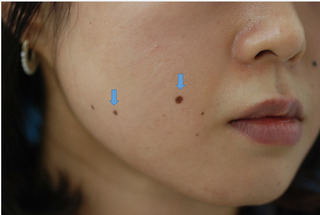 みずほクリニックのQスイッチルビーレーザーによるホクロ取りの症例写真(ビフォー)
